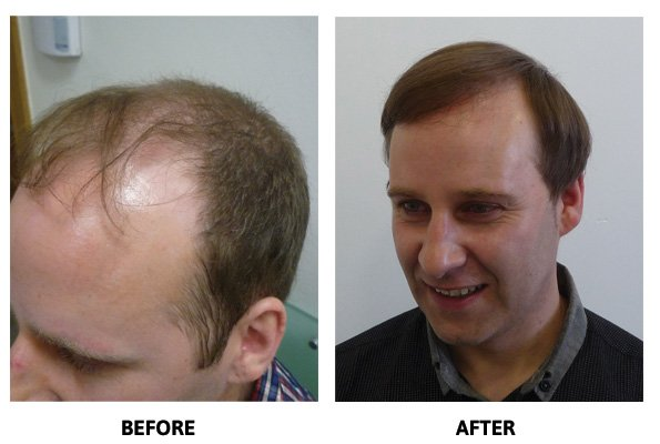 Hair Restoration - Before & After