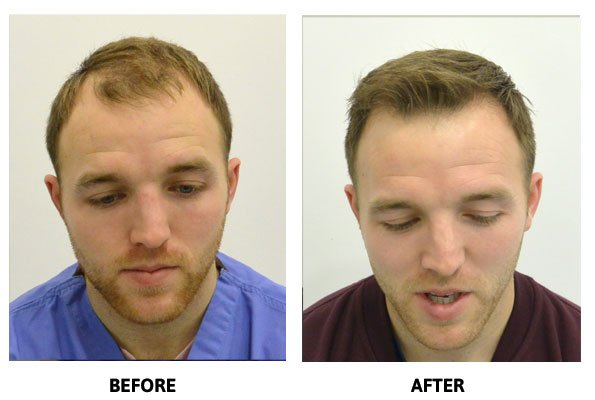 Hair Transplant & Restoration Clinic