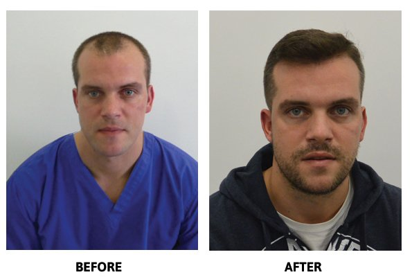 Hair Restoration Clinic - Before
