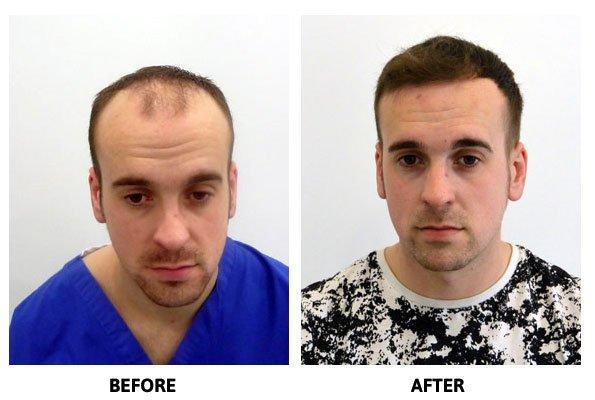 Successful hair transplant on TV Presenter Alan Hughes