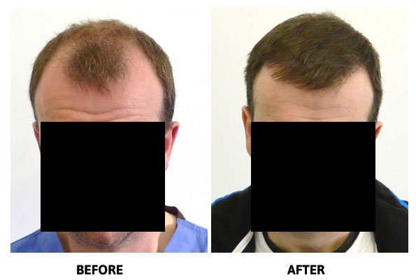 Hair Transplant - Before & After