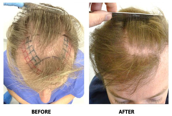 Hair Restoration – Before and After