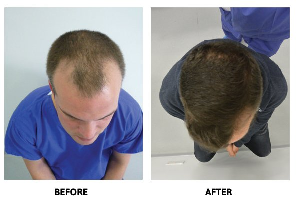 Hair Restoration Clinic - After