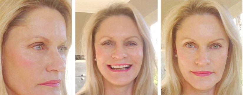 Principles of Skin Restoration