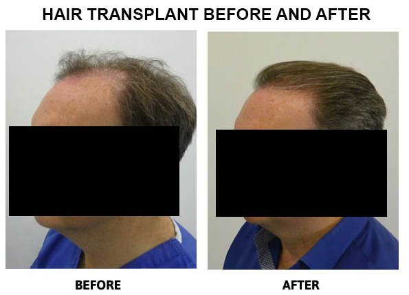 Do hair transplants look real and natural?