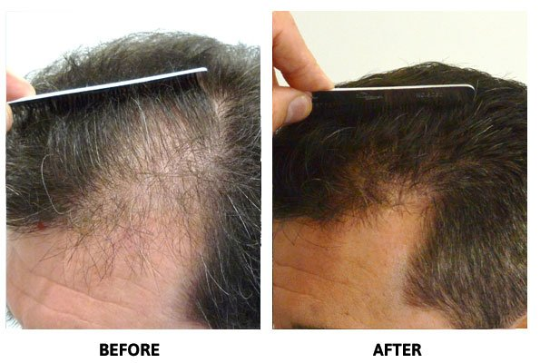 Hair Thinning Treatment