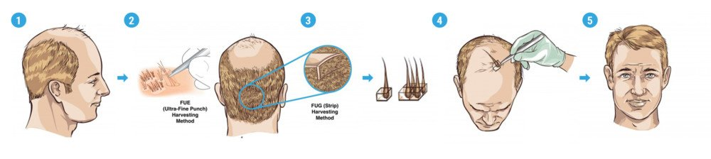 What is a Follicle Unit Extraction Hair Transplant Procedure?