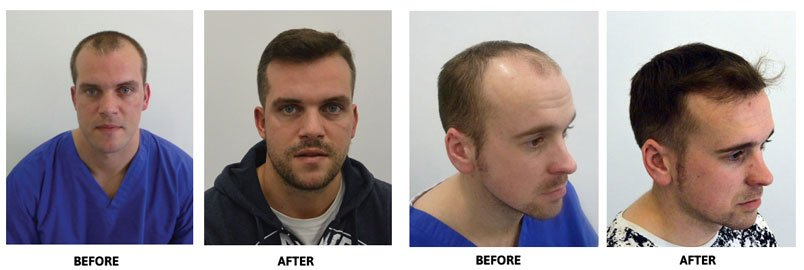When is a hair transplant the best solution for hair loss?