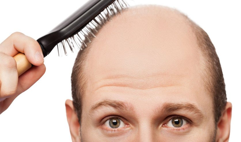 The Role of Genetics in Hair Loss