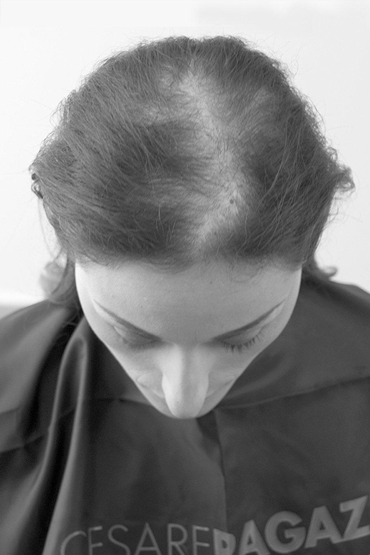 Medical Hair Systems