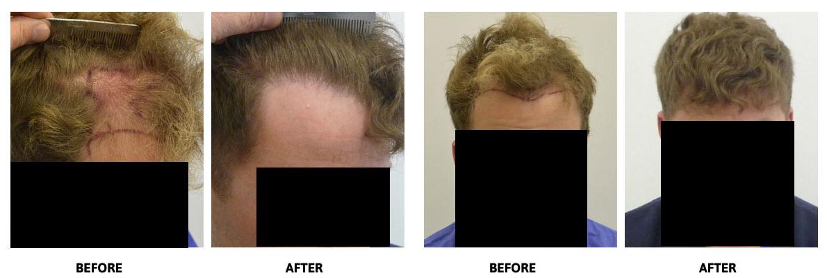 Hair-Skin-Wellness-Hair-Transplant