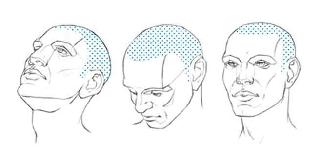 What To Expect From A Hair Transplant Surgery