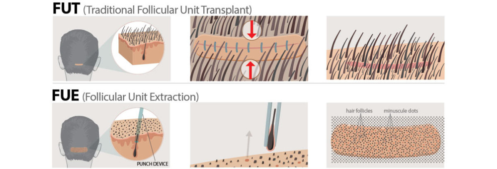 About the Hair Transplant Donor Area