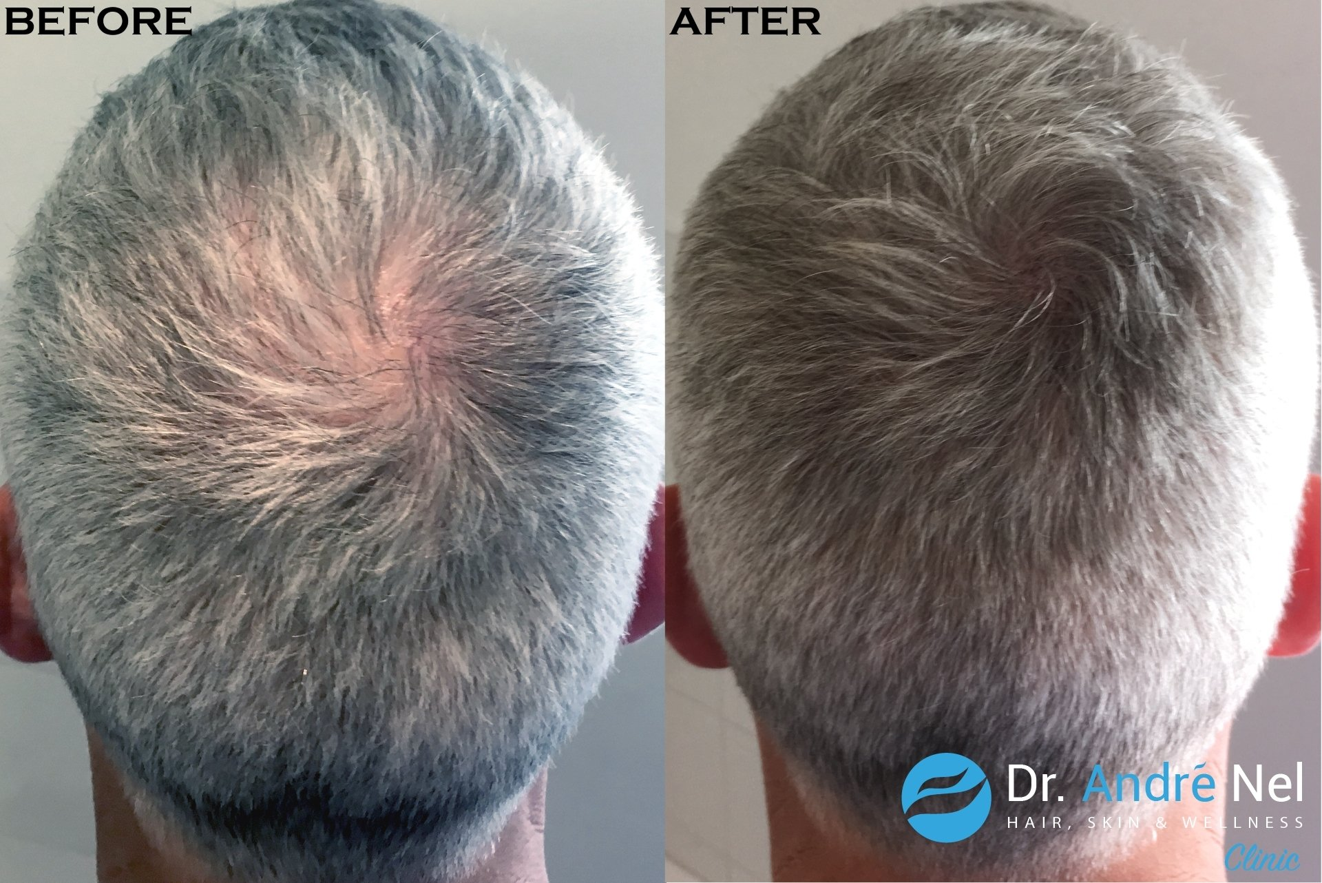 Scalp Micro Pigmentation 2