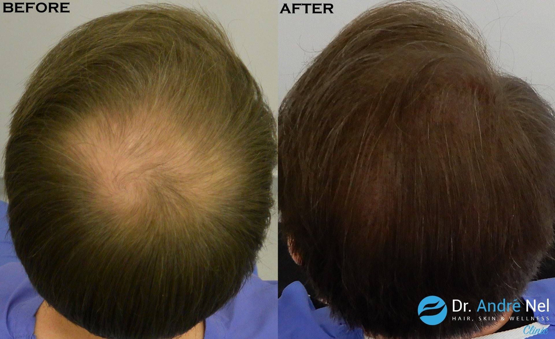 Scalp Micro Pigmentation 3