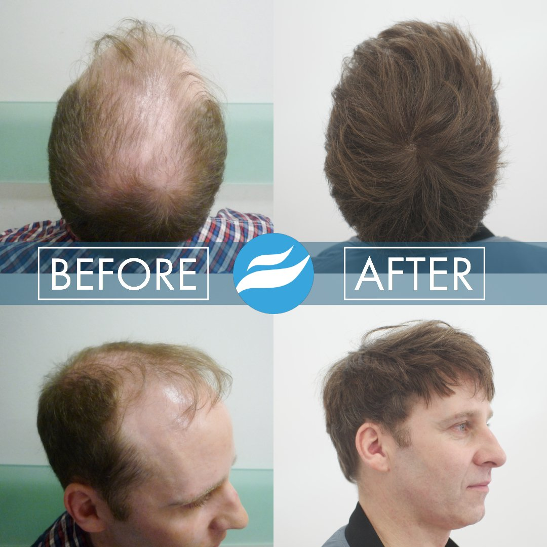 hair-transplant-fue-fut-3500-grafts-cnc-tim-oconnell-before-after-crown-side
