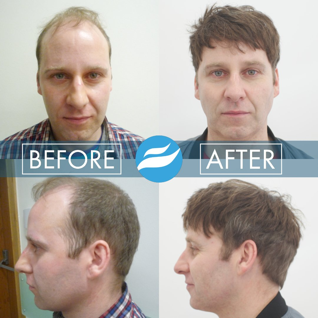 hair-transplant-fue-fut-3500-grafts-cnc-tim-oconnell-before-after-front-side