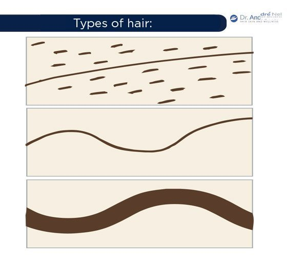 scalp-types-of-hair-shaft-density-miniaturization-dr-andre-nel