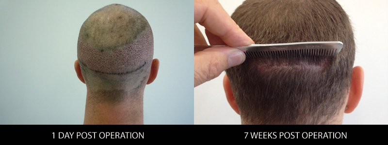 fue-fut-hair-transplant-combination-follicle-unit-extraction-dr-andre-nel