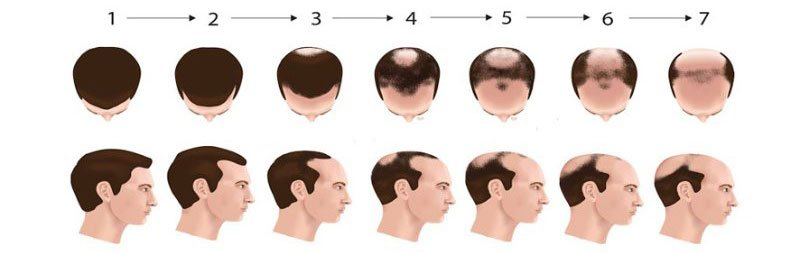 male-pattern-baldness-androgenetic-alopecia-receding-hairline-dr-andre-nel