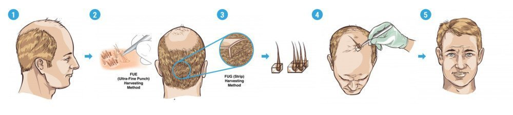 fue-fut-hair-transplant-diagram-dr-andre-nel